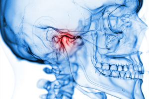 Temporomandibular Joint (TMJ) surgery Brisbane Dr Michael Burgess