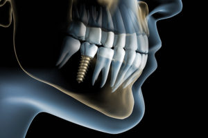 Oral surgery teeth implants Brisbane